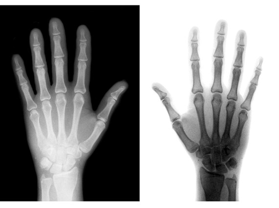 Xray Left Hand X-Ray Gifts from Etsy
